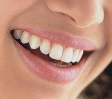 sonrisa, risa, risoterapia